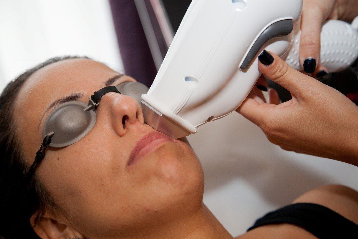 marilyn estetica Epilazione laser viso
